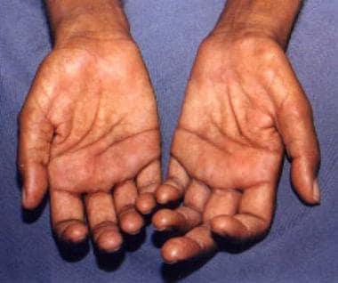 Claw-hand deformities of both hands in a patient w