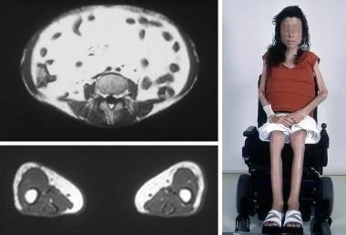 Congenital generalized lipoatrophy in a 16-year-ol