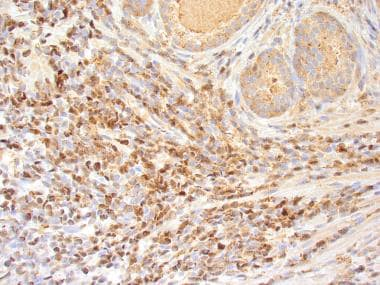 Cyclin D1 immunostain of mantle cell lymphoma of t