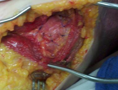 Sutured subscapularis with bone block to the creat