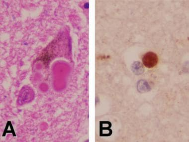 A. Hematoxylin and eosin staining of the substanti