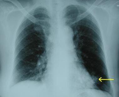 Chest radiograph demonstrating a peripheral opacit