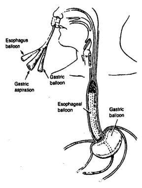 Illustration of placement of Sengstaken-Blakemore