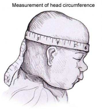 Measurement of head circumference.