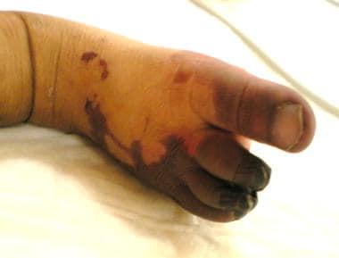 Distal right foot ischemia with fingertips gangren