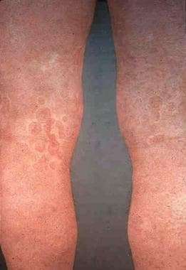 Raised erythematous wheals with postinflammatory h