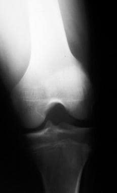 Knee radiograph of a 17-year-old athlete with a di