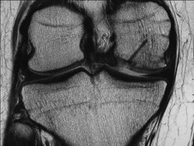 Osteochondritis dissecans. Postoperative MRI coron