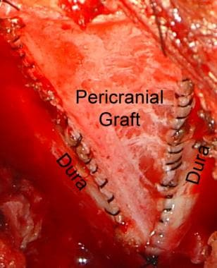 Intraoperative photograph of duraplasty with peric
