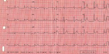 ECG tracing in a patient who developed cardiogenic