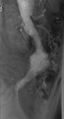 Lateral arteriogram demonstrates infrarenal abdomi