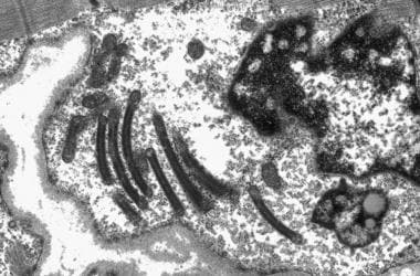Electron micrograph showing abnormal mitochondria,