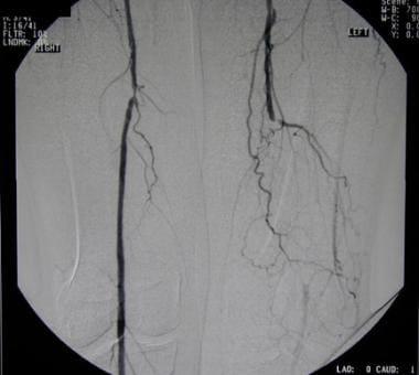 peripheral arterial occlusive disease: practice essentials, Cephalic Vein