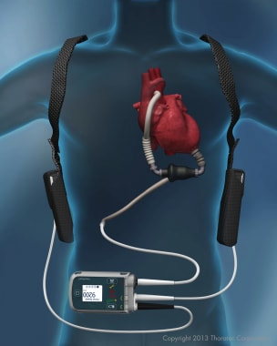 HeartMate II Left Ventricular Assist Device. Repri
