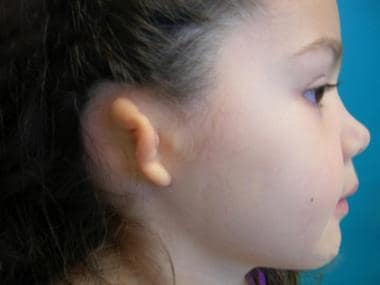 Patient with most common type of microtia (ie, gra