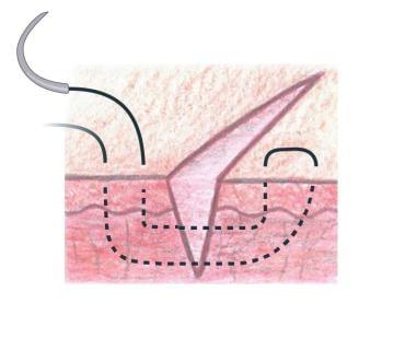 Far-near near-far modification of vertical mattres