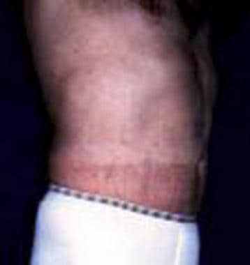 Patient 1 after ultrasonic-assisted liposuction (u