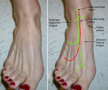 Foot with surface landmarks. Note the course of th