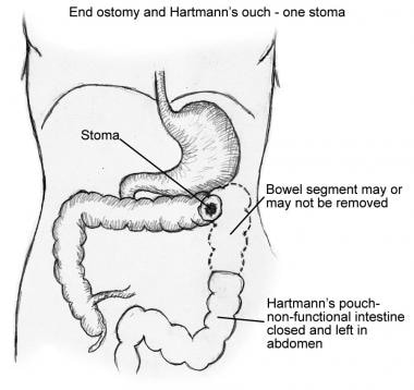 Illustration of portion of colon that would be rem