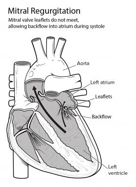 Mitral regurgitation.