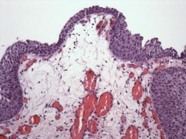Polypoid cystitis. Broad, polypoid protrusion with