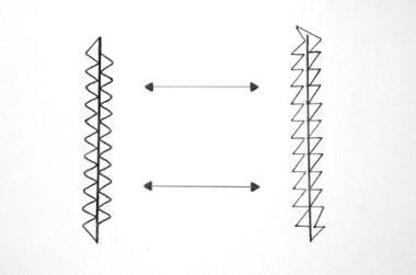 Scar revision. Modification of customary isosceles
