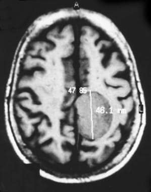 Nonenhanced axial magnetic resonance image demonst