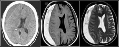 Subacute subdural hematoma in a right frontopariet