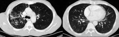 Chest CT scans in a patient with Mycobacterium avi