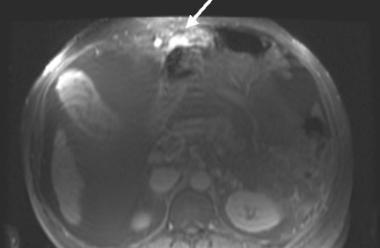 Magnetic resonance imaging (MRI) study. Ascites is