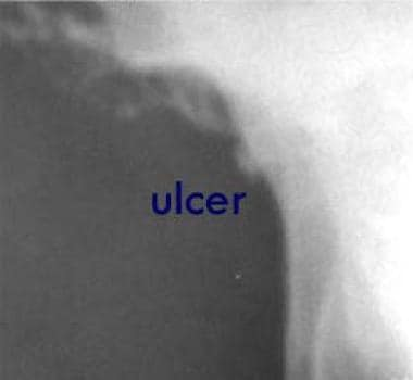 This image shows a small lesser-curve gastric ulce