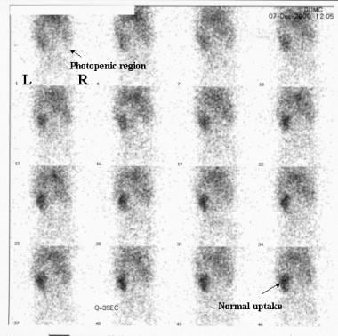 Initial perfusion images from a nuclear renal scan