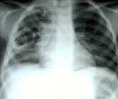 Pneumonia with multiple pneumatoceles.