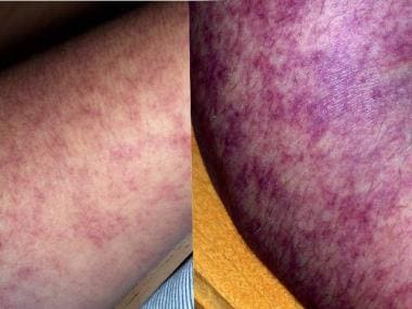 Livedo reticularis of the upper extremities, which