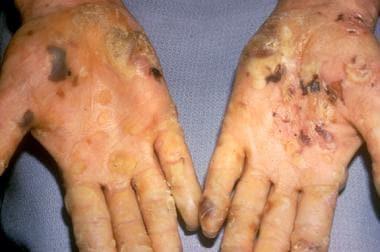 Epidermolysis bullosa simplex, Koebner subtype. Pa