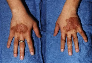 Hyperpigmented streaks on the dorsa of hands of a