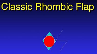 Classic rhombic flap.