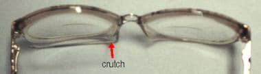 Glasses with a crutch attached (arrow) that can be