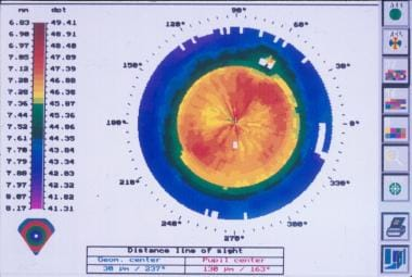 Corneal topography with central uniform steepening