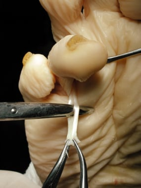 Claw toe. Separate the 2 raphe of the flexor digit