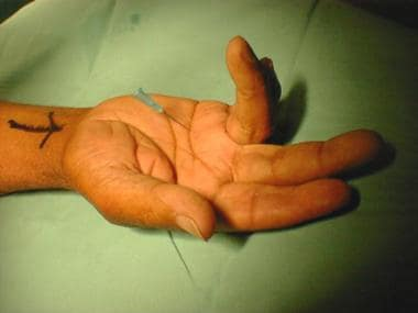 Movement of needle with flexion of digit confirms