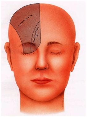 Direct brow lift. Innervation by the supraorbital