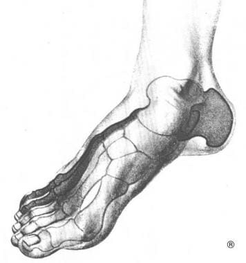 View of the 2 arches of the foot.