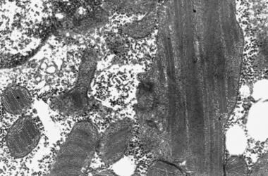 Electron micrograph showing mitochondria with para