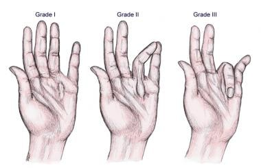 Three clinical grades of Dupuytren disease.