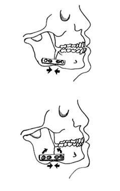 Top: Inferior compression plate. Bottom: Eccentric