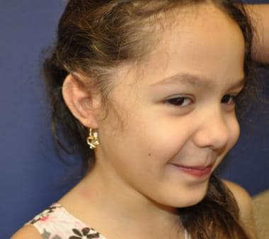 Patient with grade III microtia and atresia after