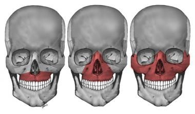 Le Fort I, II, and III maxillary fractures.