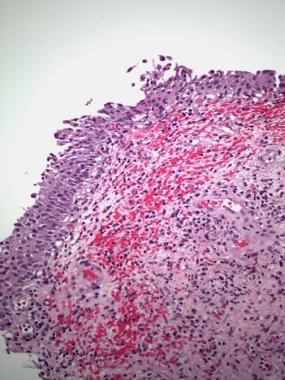 Hemorrhagic cystitis. Hemorrhage and edema are pre