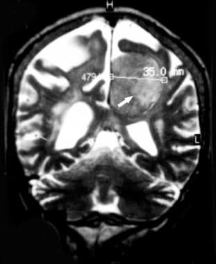 Coronal T2-weighted magnetic resonance image demon